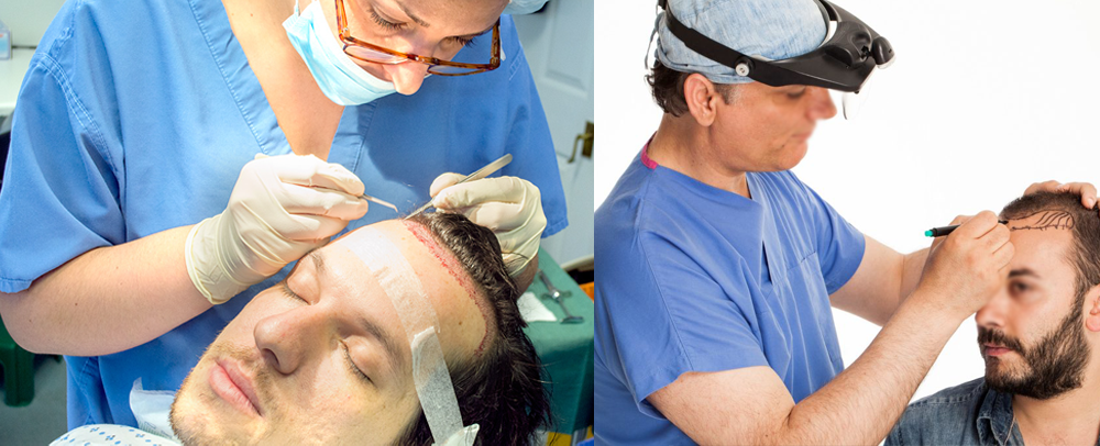 how does hair transplant work